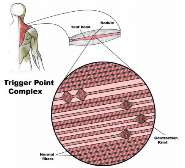 Picture of trigger point complex